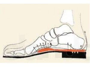 Берегите ножки смолоду!